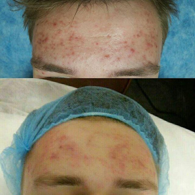 До и после чистки лица пилингом ADN
