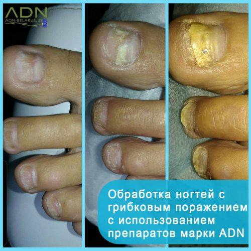 Обработка ногтей с грибковым поражением препаратами израильской марки ADN (Интервалы между снимками 2 недели)