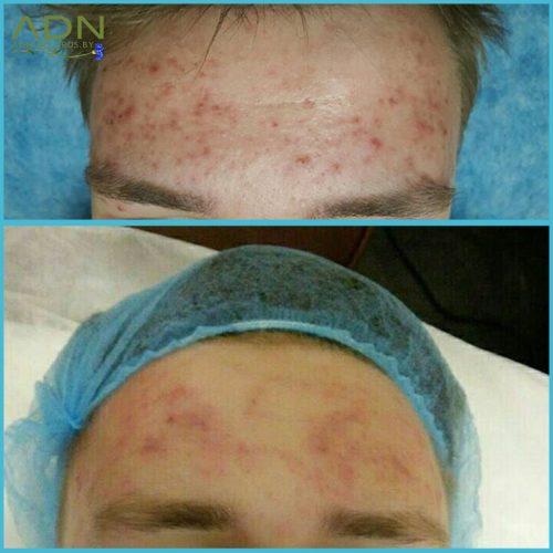 Чистка лица у подростка (до и после применения пилинга)